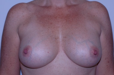 breast aug front after 3, reduced