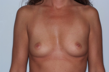 breast aug, front, before 10