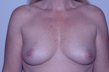 breast aug front before 3,reduced