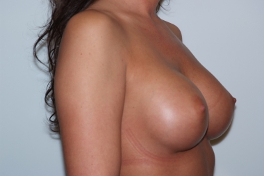breast aug, oblique, after 10