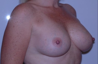 breast aug oblique after 3,resized