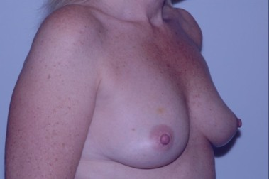 breast aug oblique before 3,resized