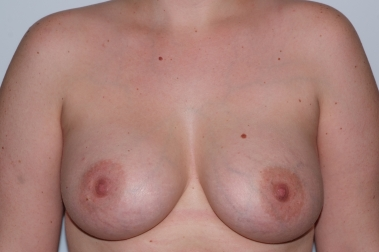 breast aug12,after,front