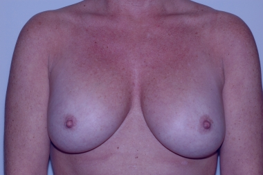breast aug,front,after 5