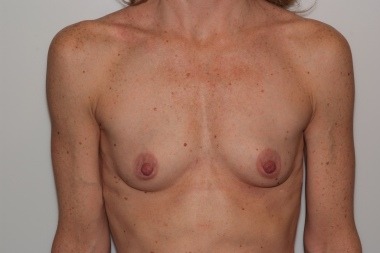 breast aug,front,before 14