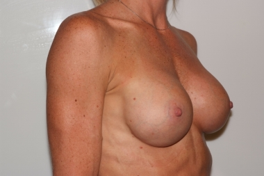 breast aug,oblique,after 14