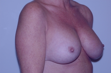 breast aug,oblique,after 5