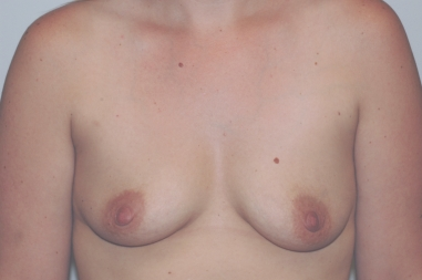 breastaug12,before,front