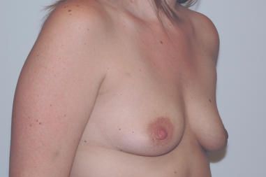 breastaug12,before,oblique