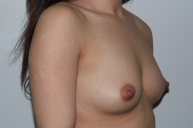 breastaug13,oblique,before