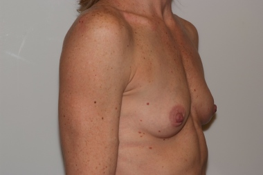 breast,oblique,before 14