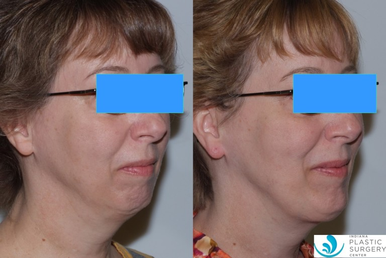 chinimplant3,oblique,before and after