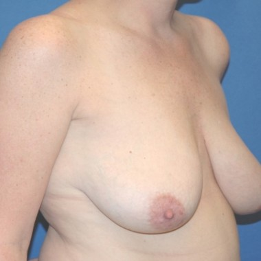 cmastopexy3,oblique,before