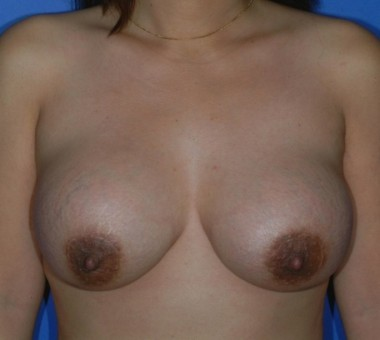 with removal of implants