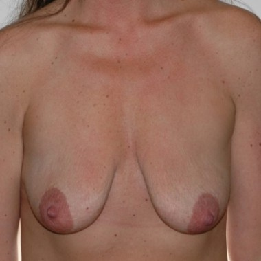with placement of implants