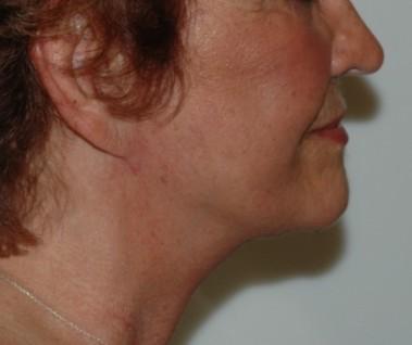 facenecklift10,side,after