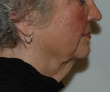 facenecklift10,side,before