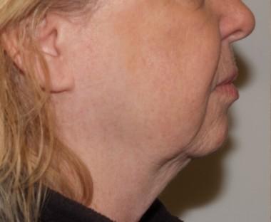 facenecklift11,side,before