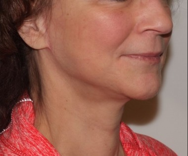 facenecklift1,oblique,after