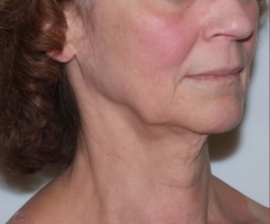 facenecklift1,oblique,before