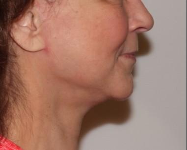 facenecklift1,side,after