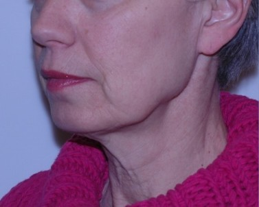 facenecklift2,oblique,before