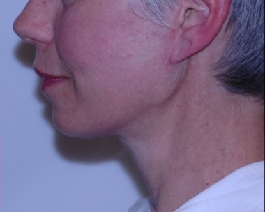 facenecklift2,side,after