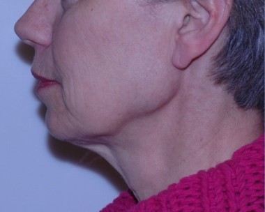 facenecklift2,side,before
