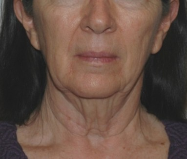 facenecklift3,front,before
