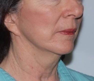 facenecklift3,oblique,after