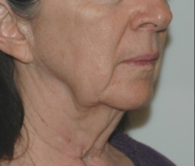 facenecklift3,oblique,before