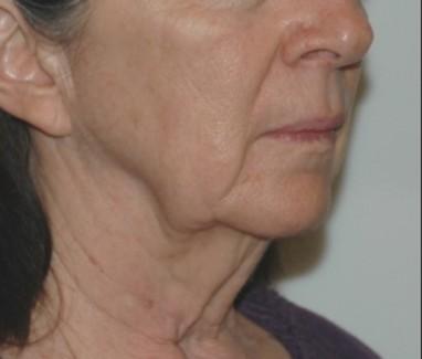 facenecklift3,oblique,before
