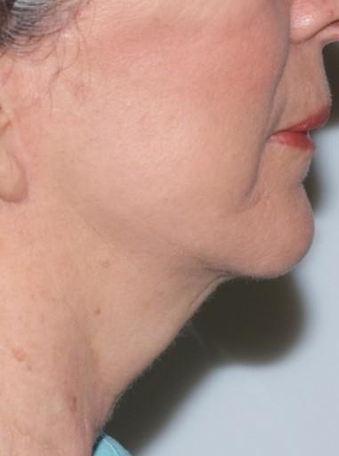 facenecklift3,side,after