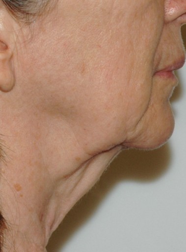 facenecklift3,side,before