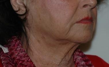 facenecklift4,oblique,before