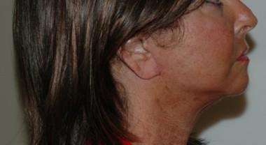 facenecklift4,side,after