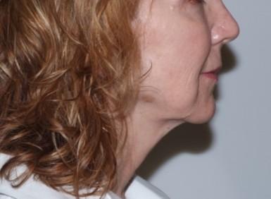 facenecklift5,side,before