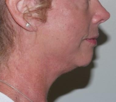facenecklift6,side,after