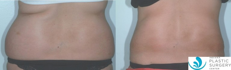 liposuction,flanks,before and after,back1