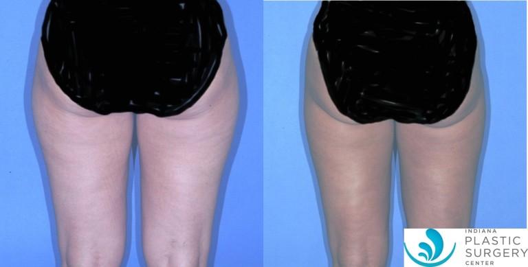 liposuction,saddlebag,before and after,back1