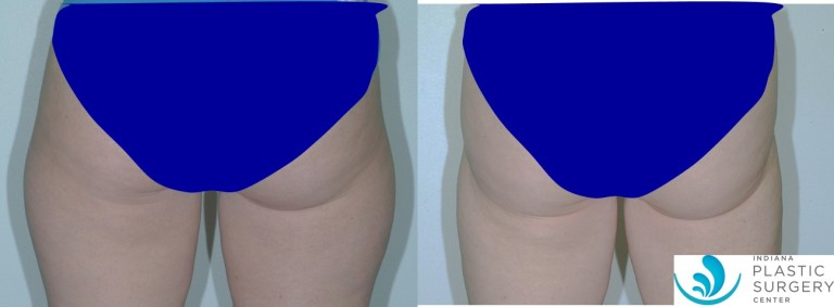 liposuction,saddlebag,before and after,back2
