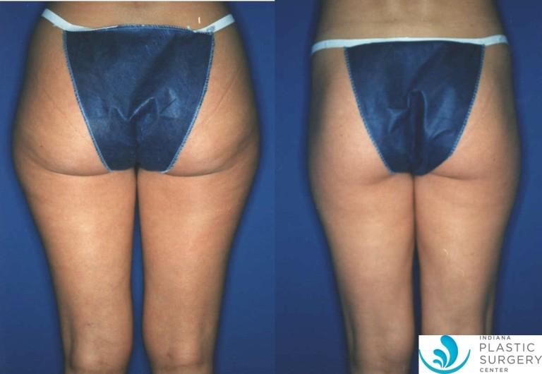 liposuction,saddlebag,before and after,back3