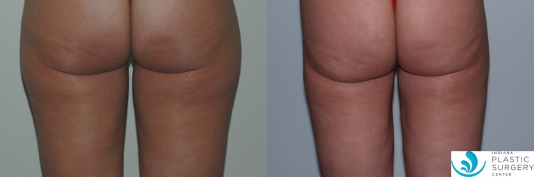 liposuction,saddlebag,before and after,back4