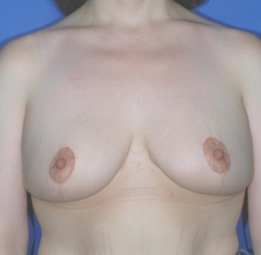 mastopexy1,front,after