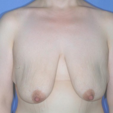 mastopexy1,front,before