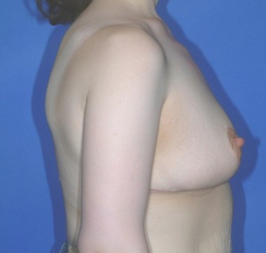 mastopexy1,side,after