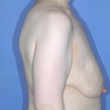 mastopexy1,side,before