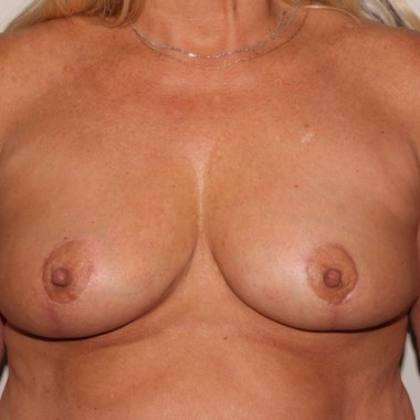 mastopexy2,front,after