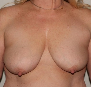mastopexy2,front,before