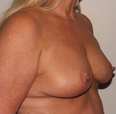 mastopexy2,oblique,after
